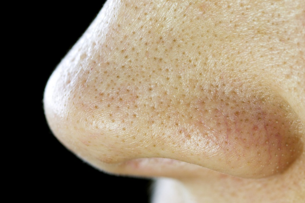 large pores on nose - photo #5