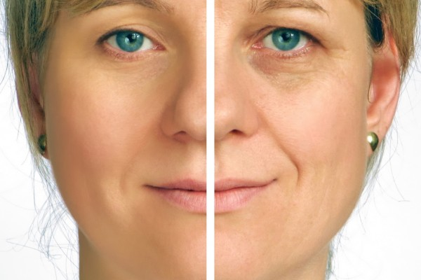 bigstock-Correction-of-wrinkles-on-half-6248301