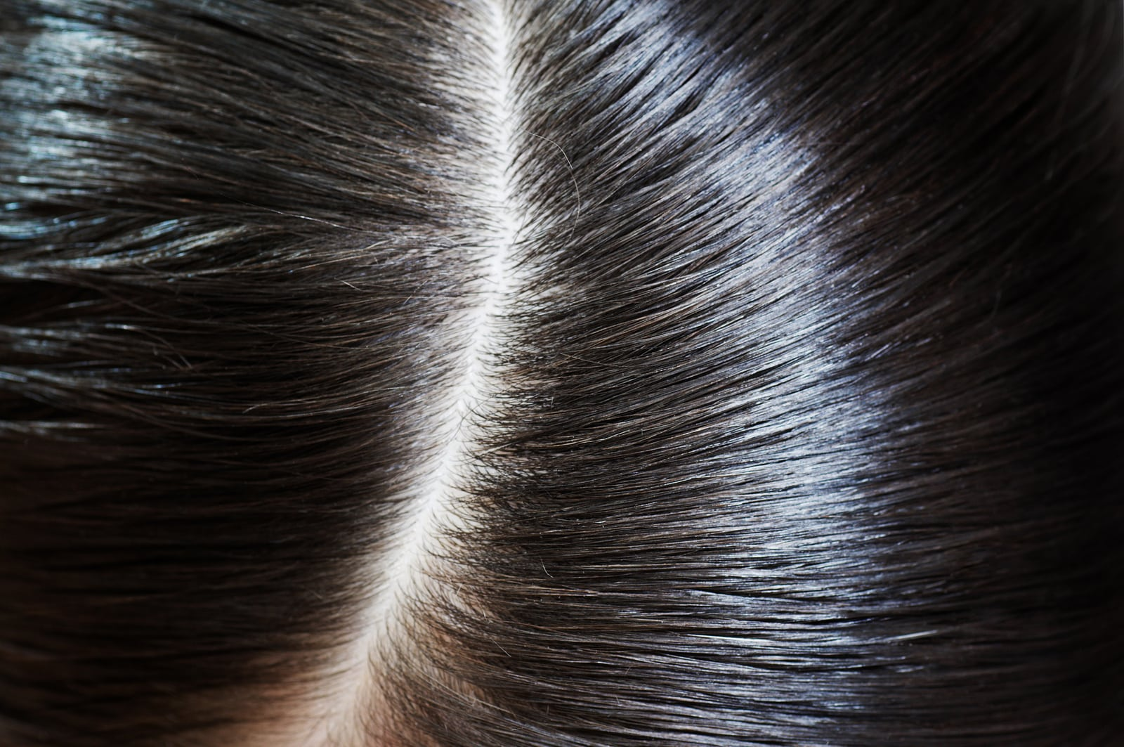 what does lice do to your scalp