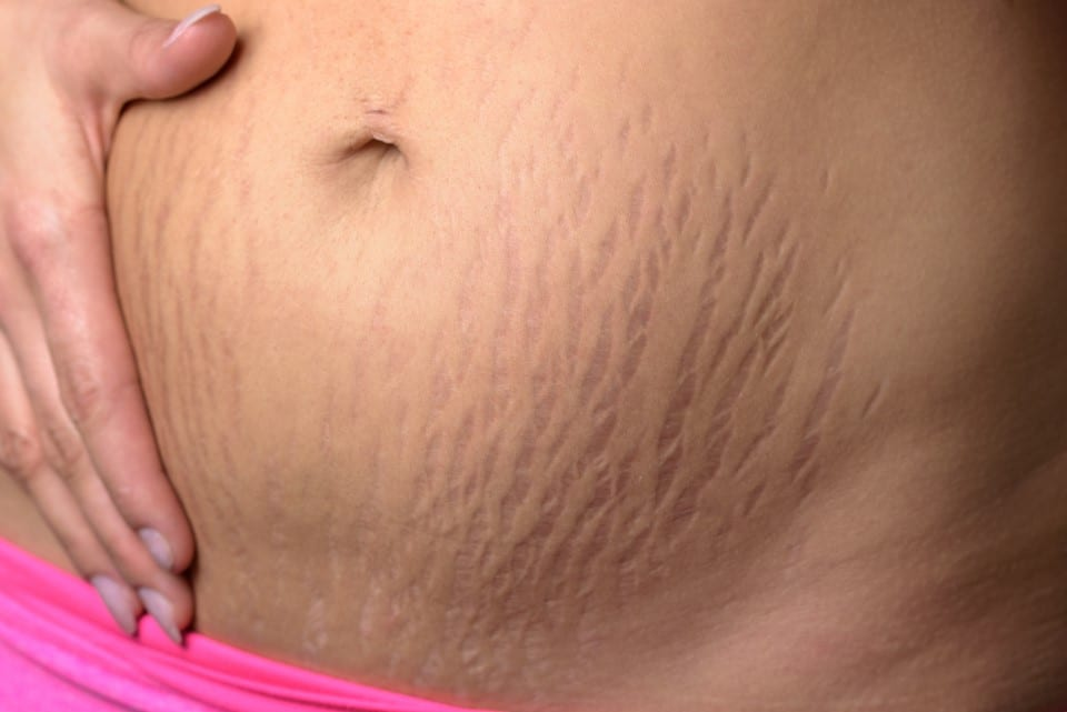 Fake And Real Cream Stretch Marks
